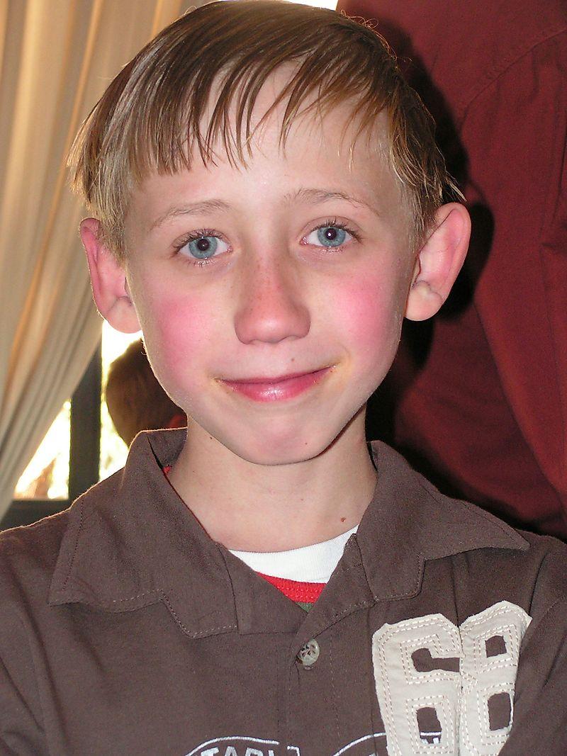 Sean before