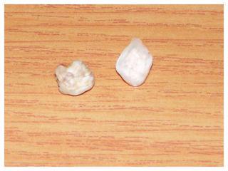 Teeth1